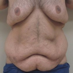 Manhattan abdominoplasty before 15